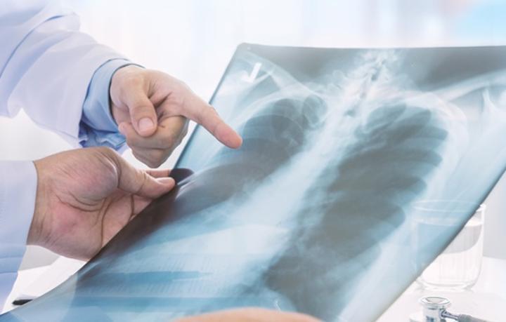Определили новый тревожный симптом у больных раком