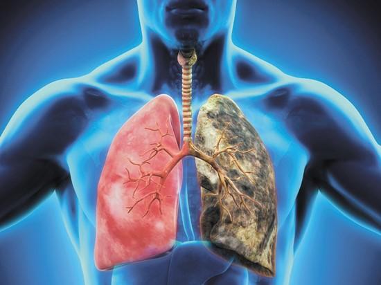 Ученые назвали еще один признак рака легких