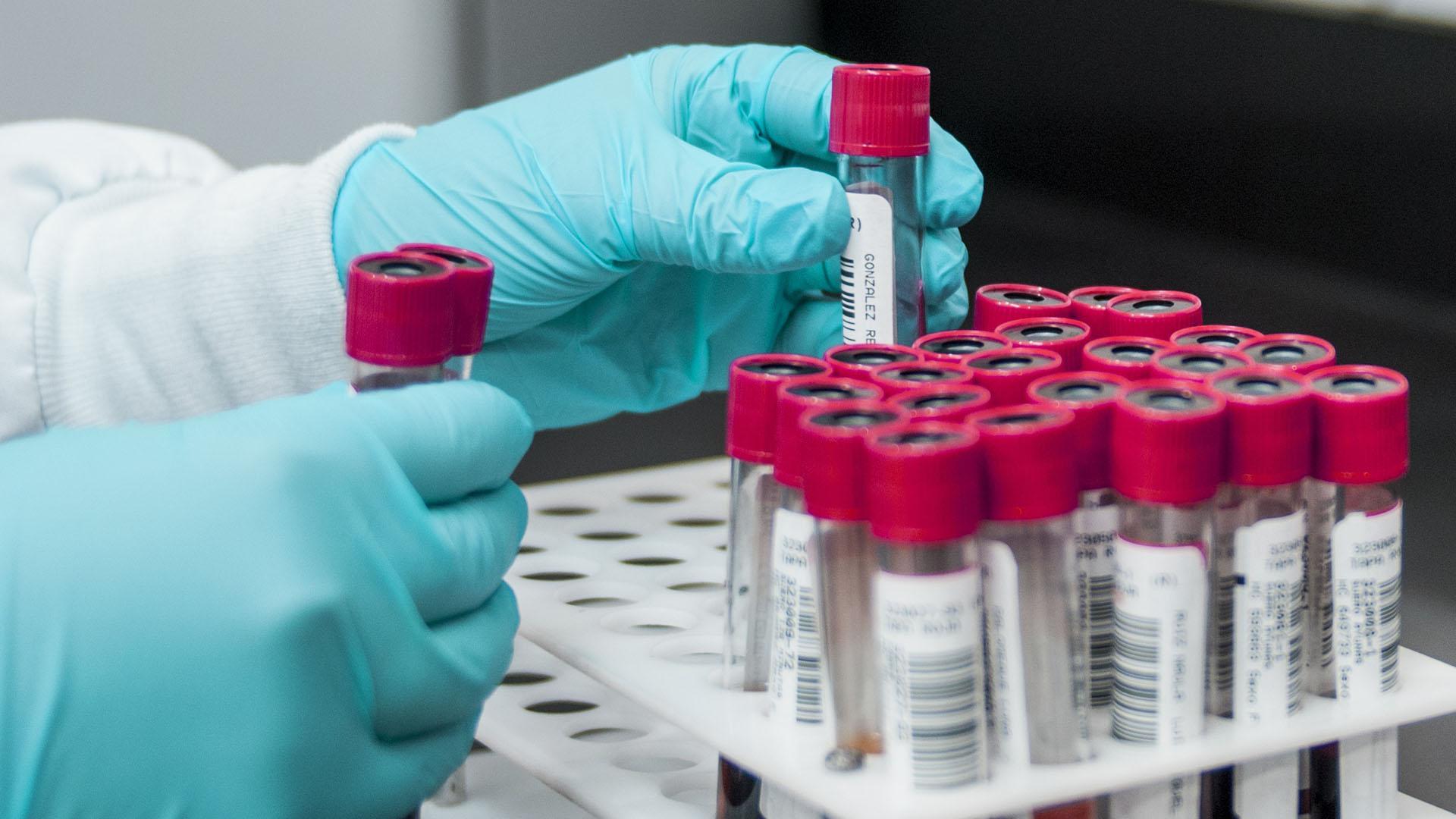 Российские ученые разрабатывают сразу несколько препаратов от ВИЧ