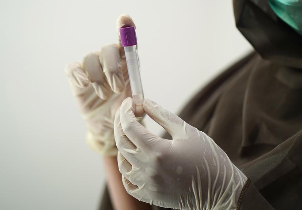 Озвучены главные причины отказов россиян от вакцинации