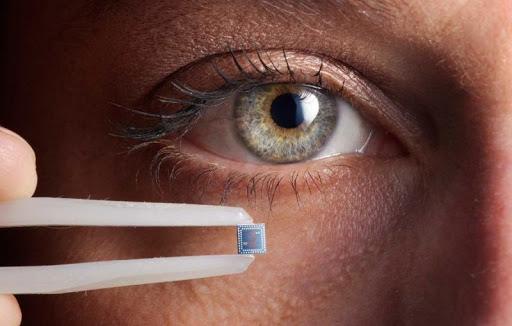 В РФ планируют вживлять чипы в человеческий мозг