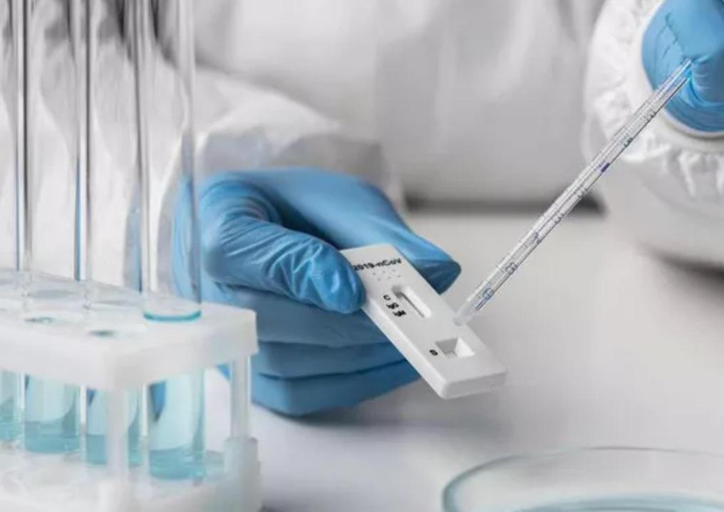 В Роспотребнадзоре заявили о наличии в России тест-систем для диагностики вируса Нипах